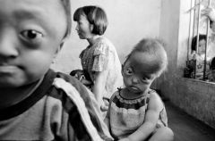 Agent Orange victims 50yrs later