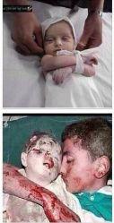 2 gaza victims