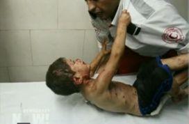 Das ist nicht Ibrahim, aber ein Kind in Gaza, das auch von Bombensplittern getroffen wurde ....