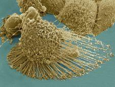 HeLa-IV apoptotic