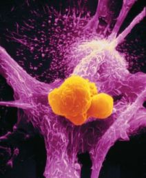 Macrophage eating cancer cell