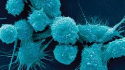 Krebszellen der Prostata