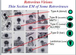 Types of Retroviruses