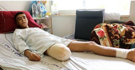 Gaza MR victim 2018